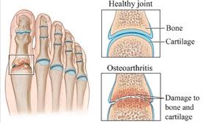 Arthritis - Highlands Foot and Ankle